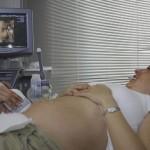 4D ultrahang: hogyan történik?