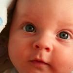 baba szeme, baba kancsalít