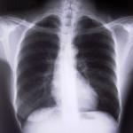 Röntgen a terhesség alatt: igen vagy nem?