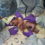 Ambuláns szülés